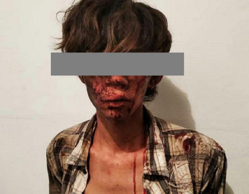 Detienen a joven que degolló a su amigo en el estado Aragua